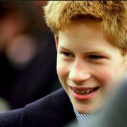 Prince Harry with braces - mBraceables